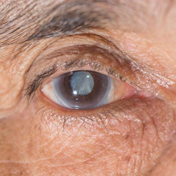 Glaucoma : Detection, Treatment And Therapy